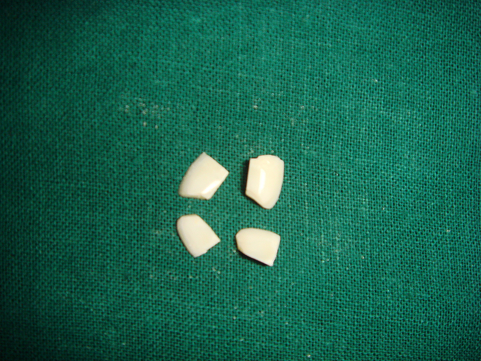 Sectioned-quadrants-of-tooth