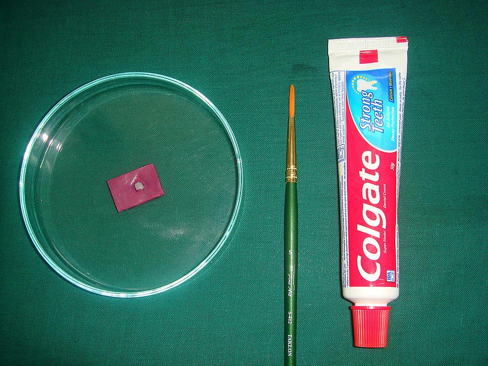 Group-B:-monofluorophosphate-treatment
