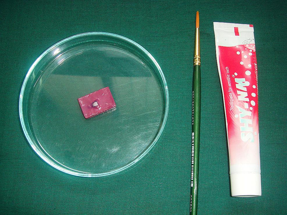 Group-D:-calcium-sodium-phosphosilicate-(Novamin)-treatment