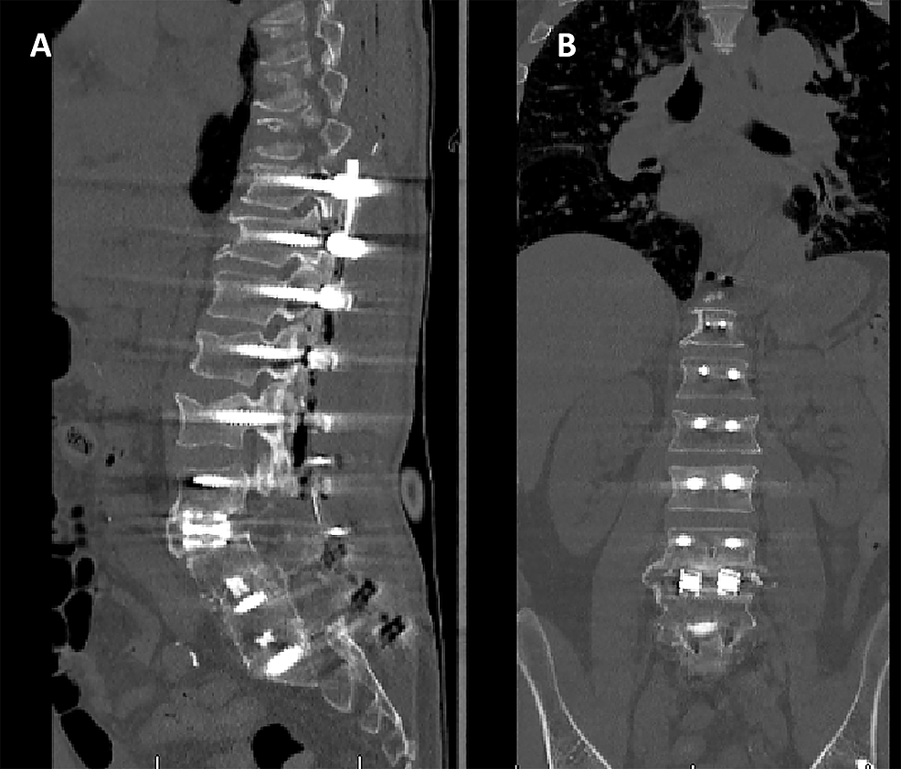 Coronal-(A)-and-sagittal-(B)-CT-images-of-the-lumbar-spine-following-the-second-stage