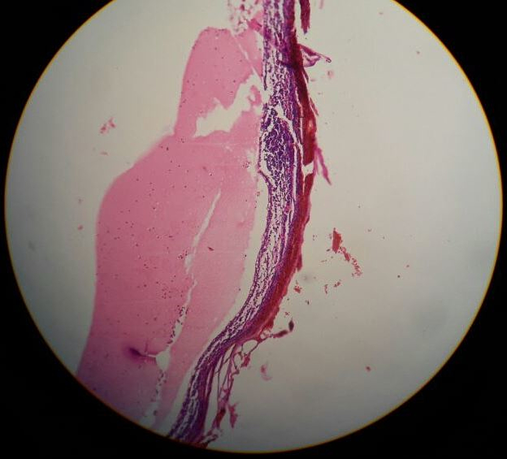Pathological-section-showing-the-cyst-wall-consisting-of-fibrocollageneous-and-lymphoid-tissue