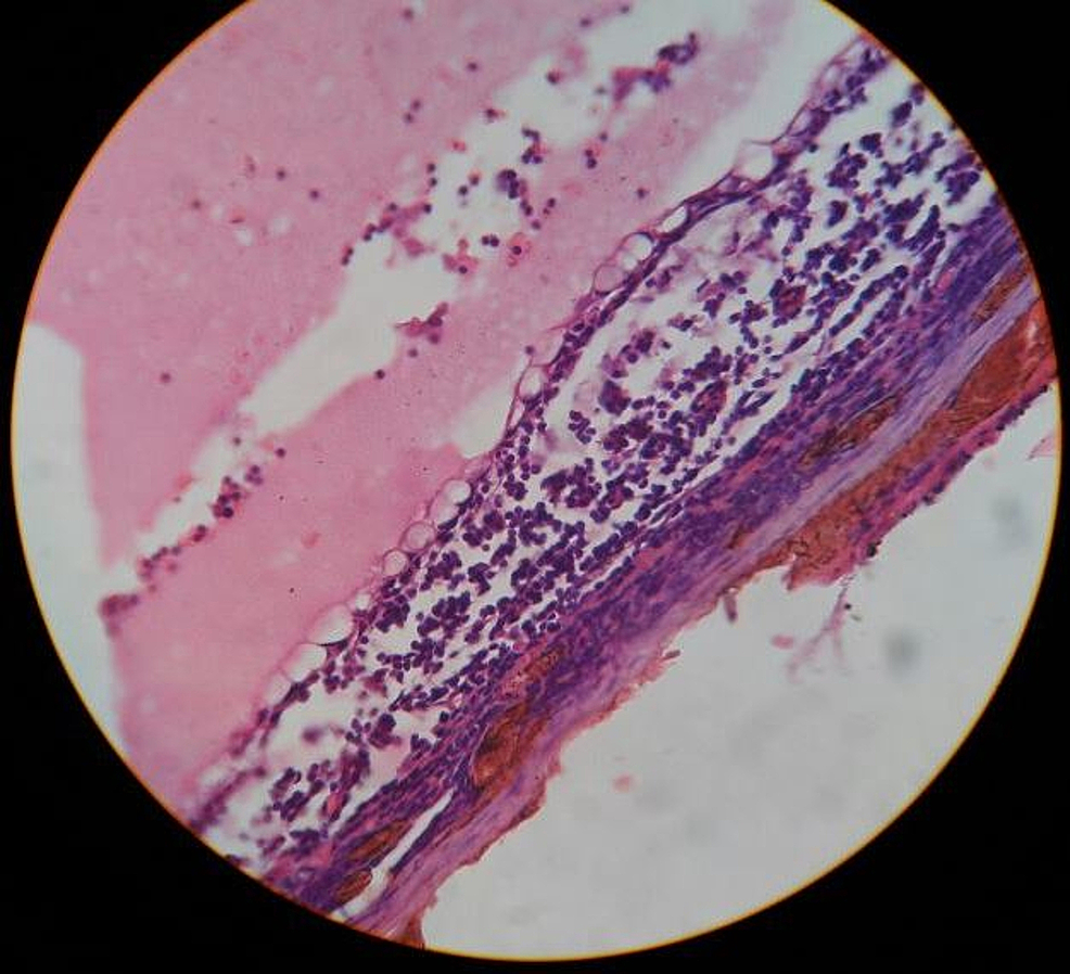 Pathological-section-shows-lining-of-the-cyst-that-is-flattened-out