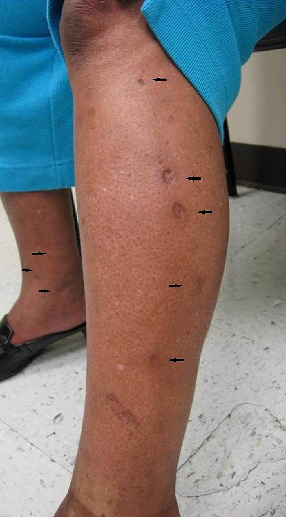 Left-lower-leg-with-fibrotic,-depressed,-round-papules-(black-arrows)