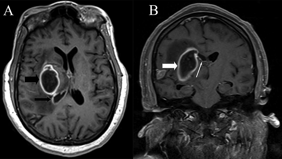 Repeat-MRI-after-clinical-deterioration