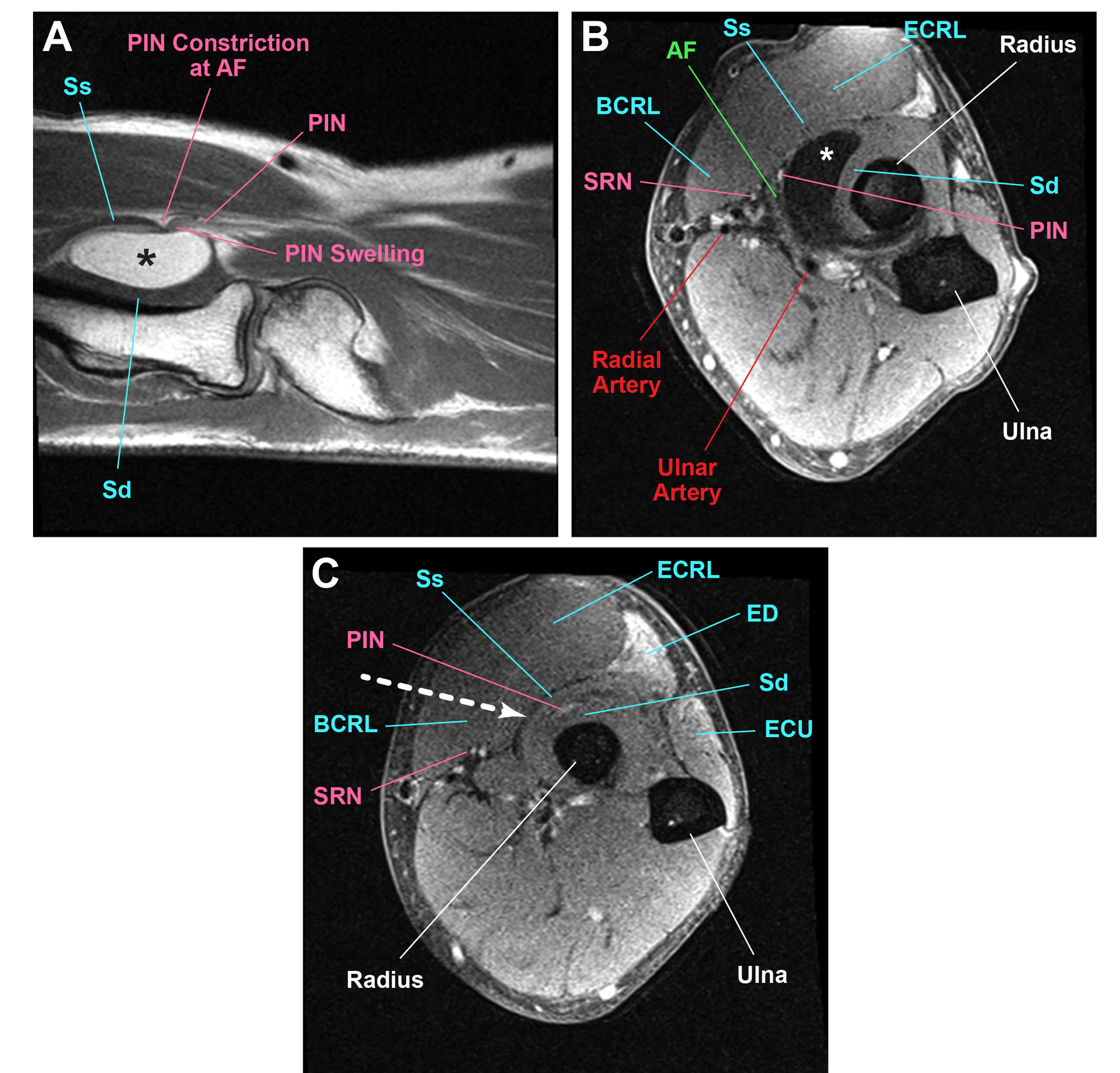 MRI-showing-a-homogeneously-hyperintense-lesion