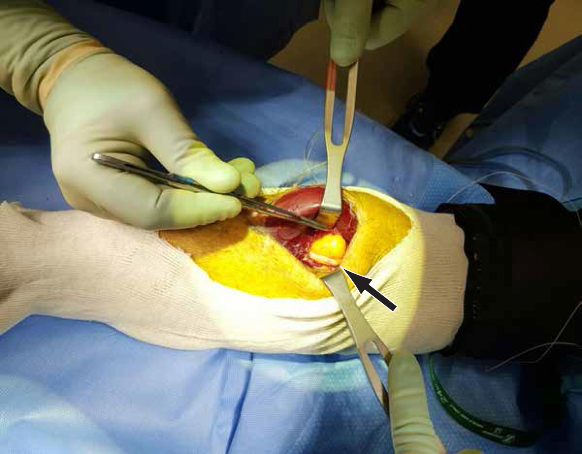 PIN-draped-across-the-lipoma