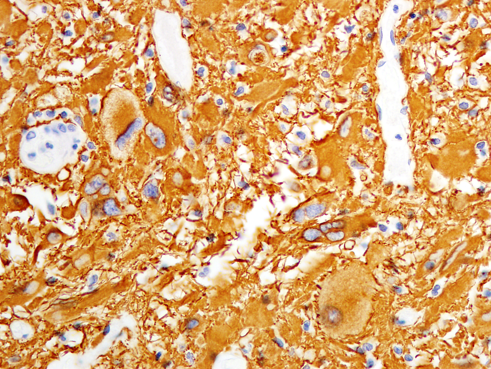 Immunohistochemical-staining-with-tumor-cells-positive-for-GFAP