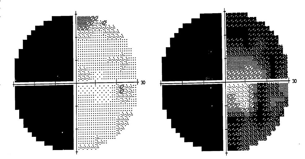 30-2-Humphrey-visual-field-perimetry