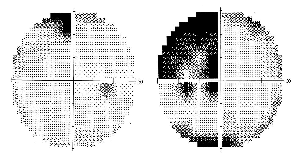 30-2-Humphrey-visual-field-perimetry-post-chemotherapy