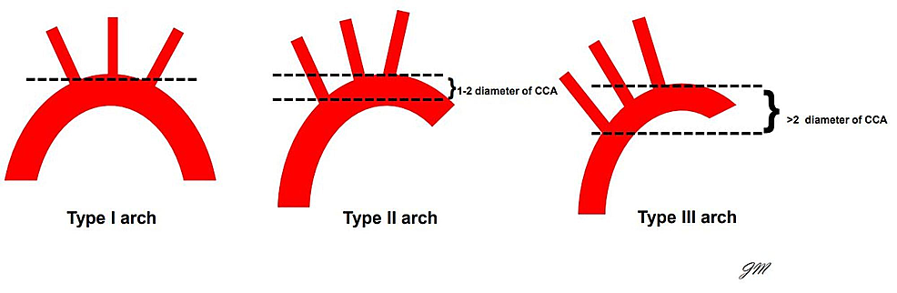 Shows-a-schematic-of-the-configurations-of-the-aortic-arch.-The-complication-of-bird-beaking-becomes-more-prevalent-as-the-angulation-within-the-arch-increases-from-type-II-to-type-III.