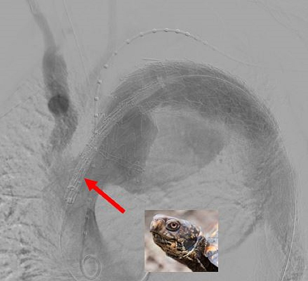 The-final-stent-is-placed-with-85-90%-overlap-with-only-approximately-a-centimeter-of-stent-deployed-proximally-for-exact-precision-known-as-the-turtlehead-(red-arrow).