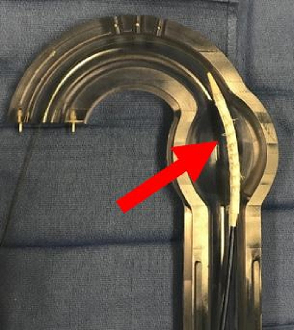 Aortic-glass-model-with-anchor-thoracic-aortic-graft-in-place-(red-arrow).