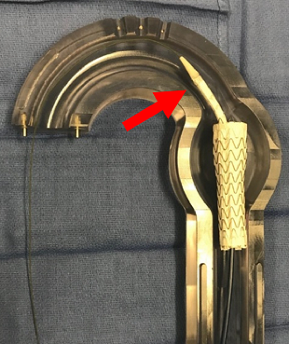 Aortic-glass-model-with-pre-deployment-(red-arrow)-of-second-thoracic-aortic-graft-to-build-rigidity.