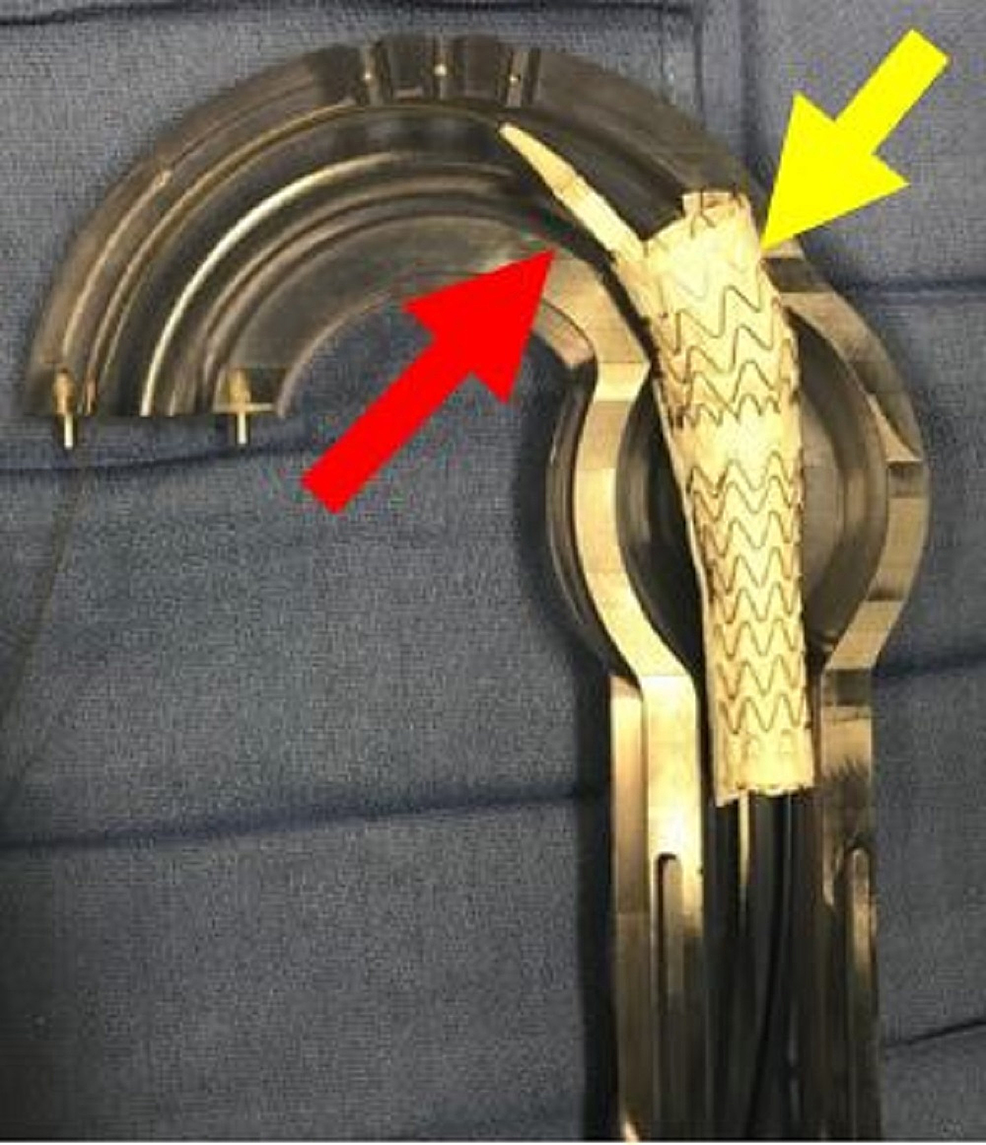 Aortic-glass-model-with-deployment-of-second-thoracic-aortic-graft-(yellow-arrow)-and-predeployment-placement-of-third-thoracic-aortic-graft-(red-arrow).-As-each-graft-is-placed-the-amount-of-overlap-increases.