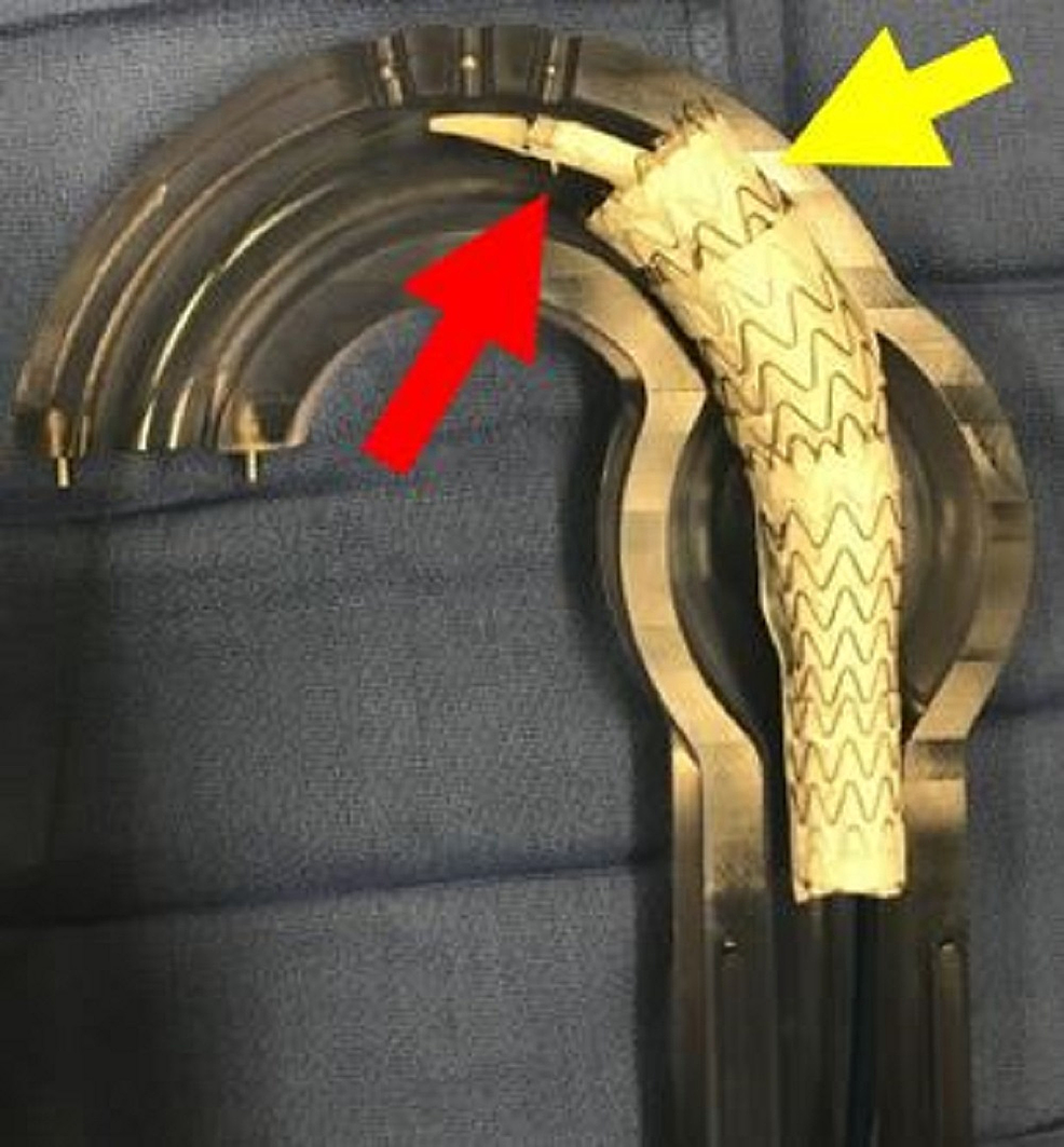 Aortic-glass-model-with-deployment-of-third-thoracic-aortic-graft-(yellow-arrow)-and-predeployment-placement-of-final-thoracic-aortic-graft-(red-arrow)-which-is-the-turtlehead-portion-for-conformability.