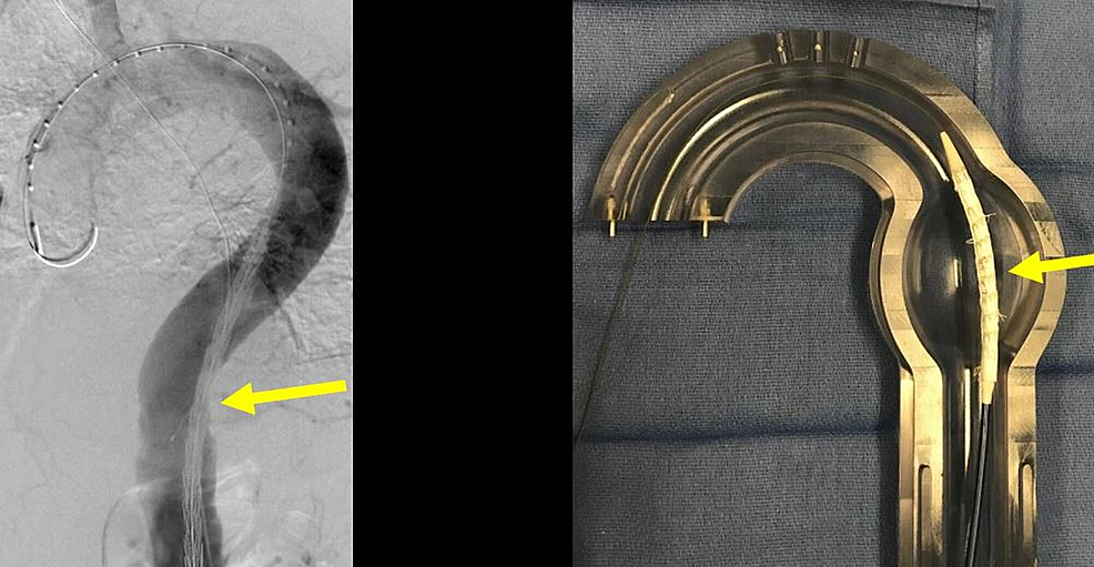 Pre-deployment-anchor-thoracic-aortic-graft-(yellow-arrow)-in-initial-position-in-the-angiogram-(left-image)-and-the-corresponding-glass-model-(right-image).