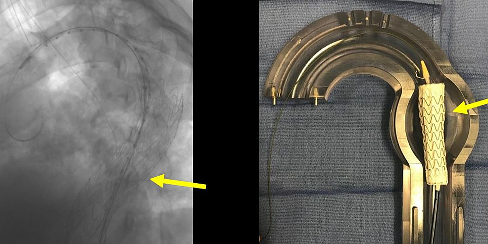 Deployment-of-the-thoracic-aortic-graft-in-the-angiogram-(left-image,-yellow-arrow)-and-the-corresponding-glass-model-(right-image).