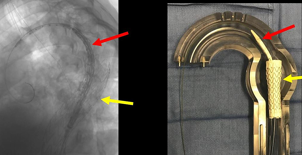 Pre-deployed-second-thoracic-aortic-graft-(red-arrow)-and-the-deployed-anchor-thoracic-aortic-graft-(yellow-arrow)-and-the-corresponding-glass-model-(right-image).