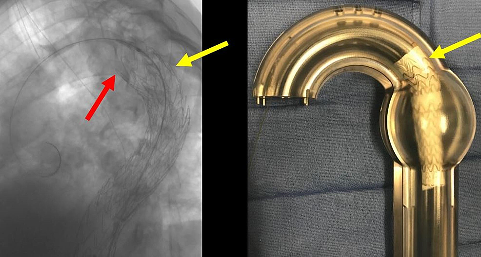 Deployed-second-thoracic-aortic-graft-(yellow-arrow,-left-image)-and-the-corresponding-glass-model-(right-image).