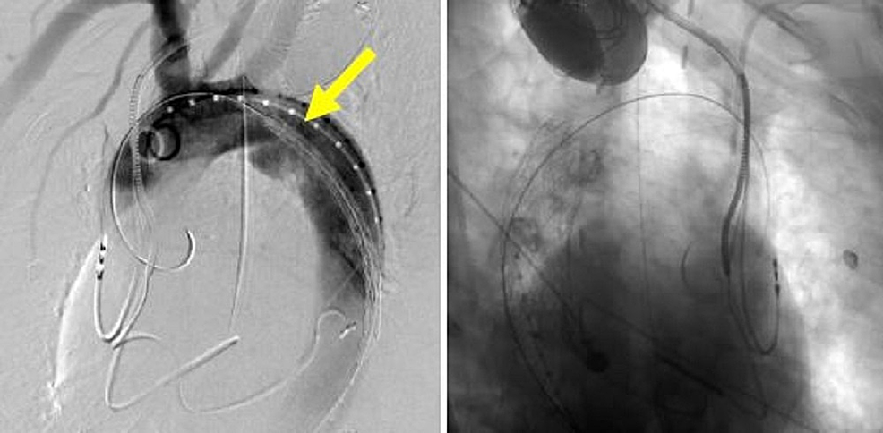 Thoracic-aortic-angiogram-showing-the-first-thoracic-aortic-graft-in-place-and-the-proximity-to-the-left-subclavian-artery-on-the-left-image-(yellow-arrow).-The-right-image-shows-the-first-thoracic-aortic-graft-deployed-within-the-aorta.