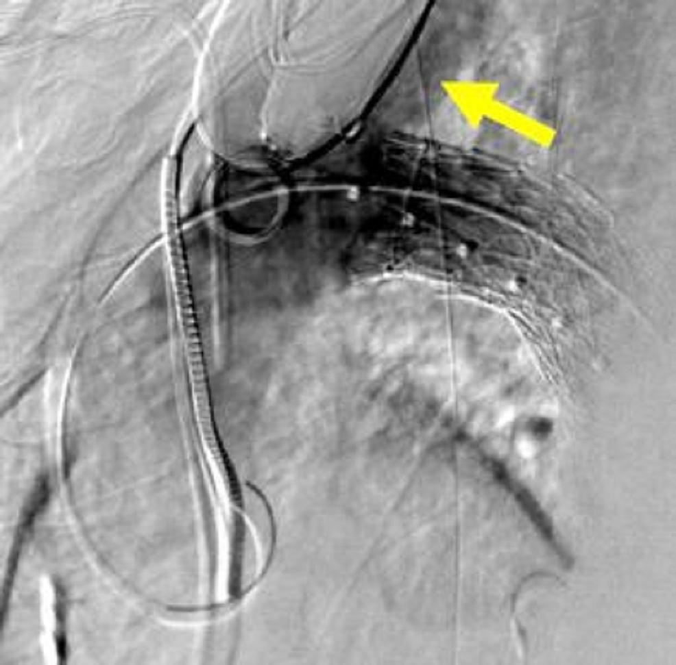 Final-thoracic-aortic-angiogram-showing-precise-exclusion-of-the-traumatic-aortic-injury-and-preservation-of-the-left-subclavian-artery-(yellow-arrow).