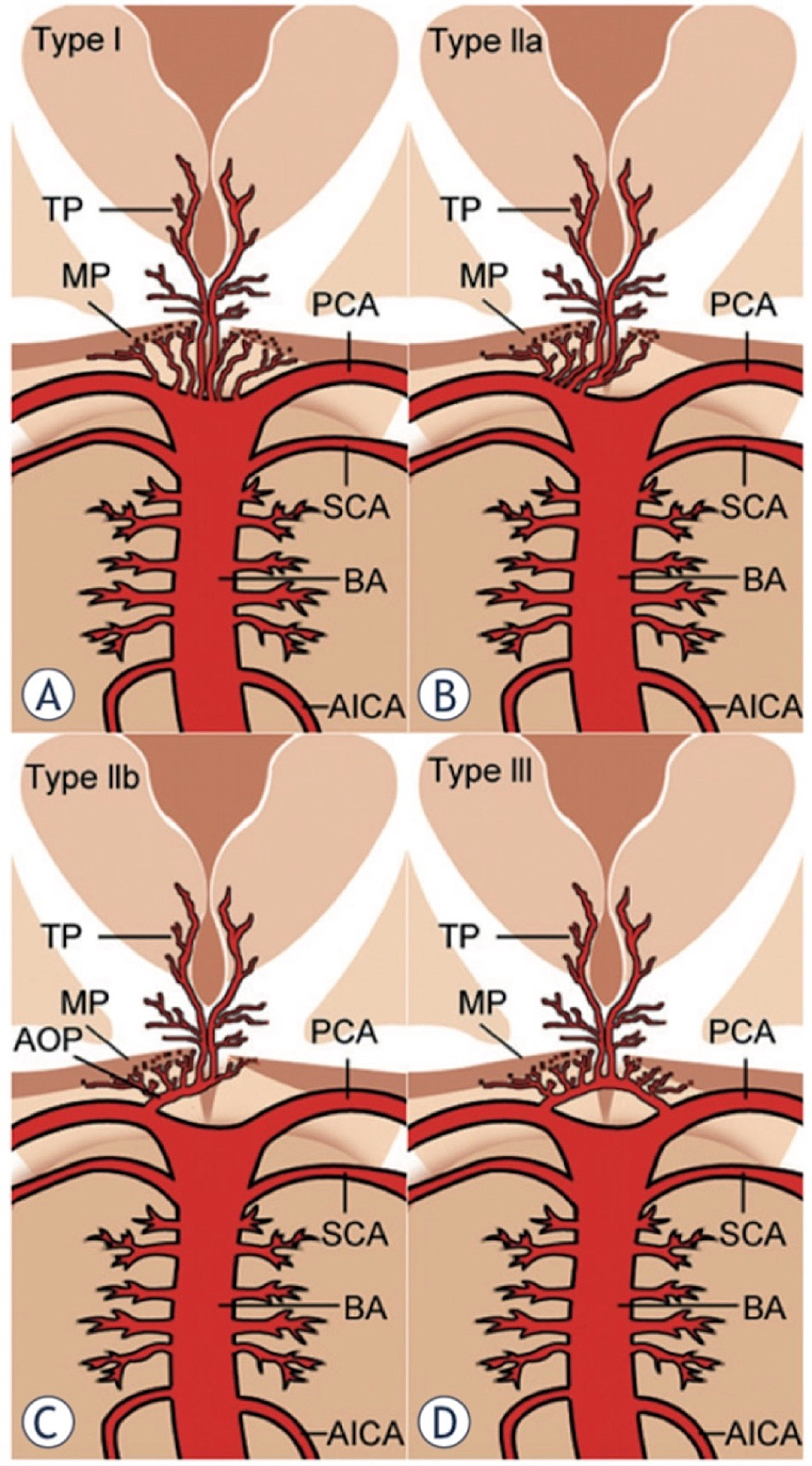 Anatomic-variations-of-the-arterial-supply-to-the-paramedian-thalamic-mesencephalic-region-as-described-by-Percheron.