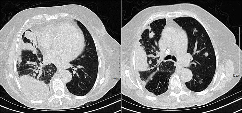 CT-of-the-chest-without-contrast