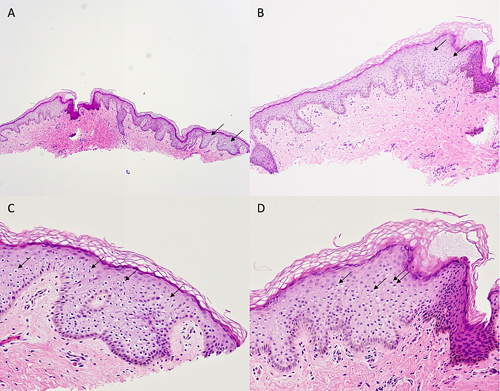Pathology-of-the-middle-papule
