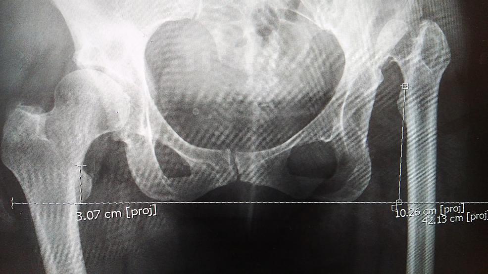 X-ray-of-the-pelvis