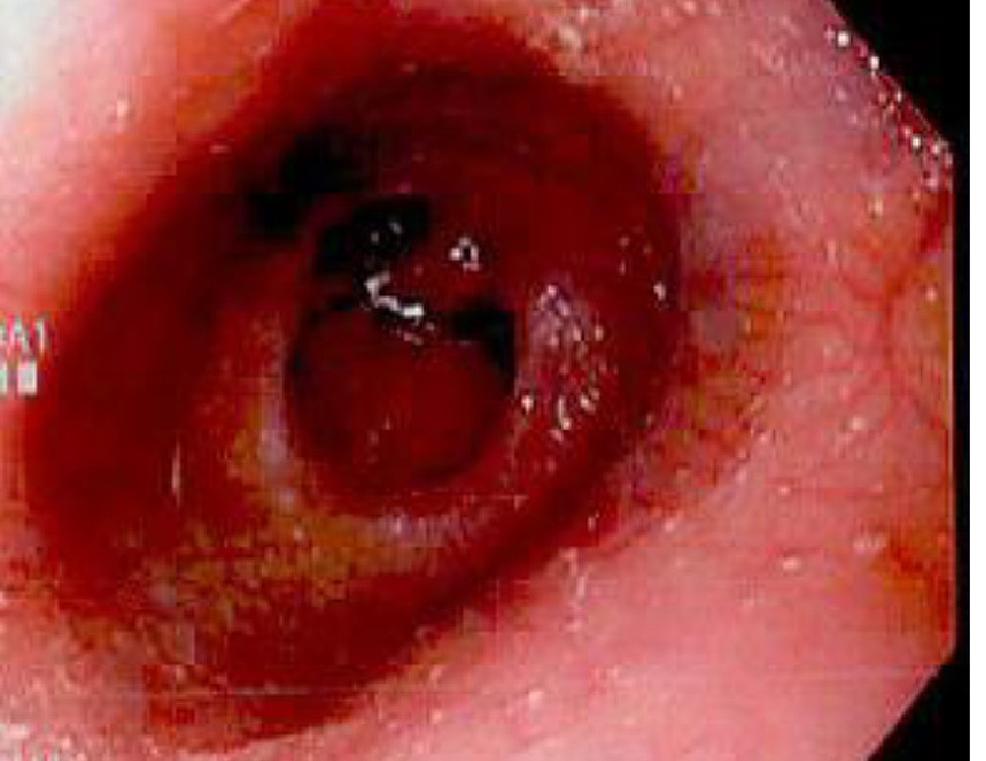 Esophagogastroduodenoscopy-(EGD)-demonstrating-erosive-duodenitis