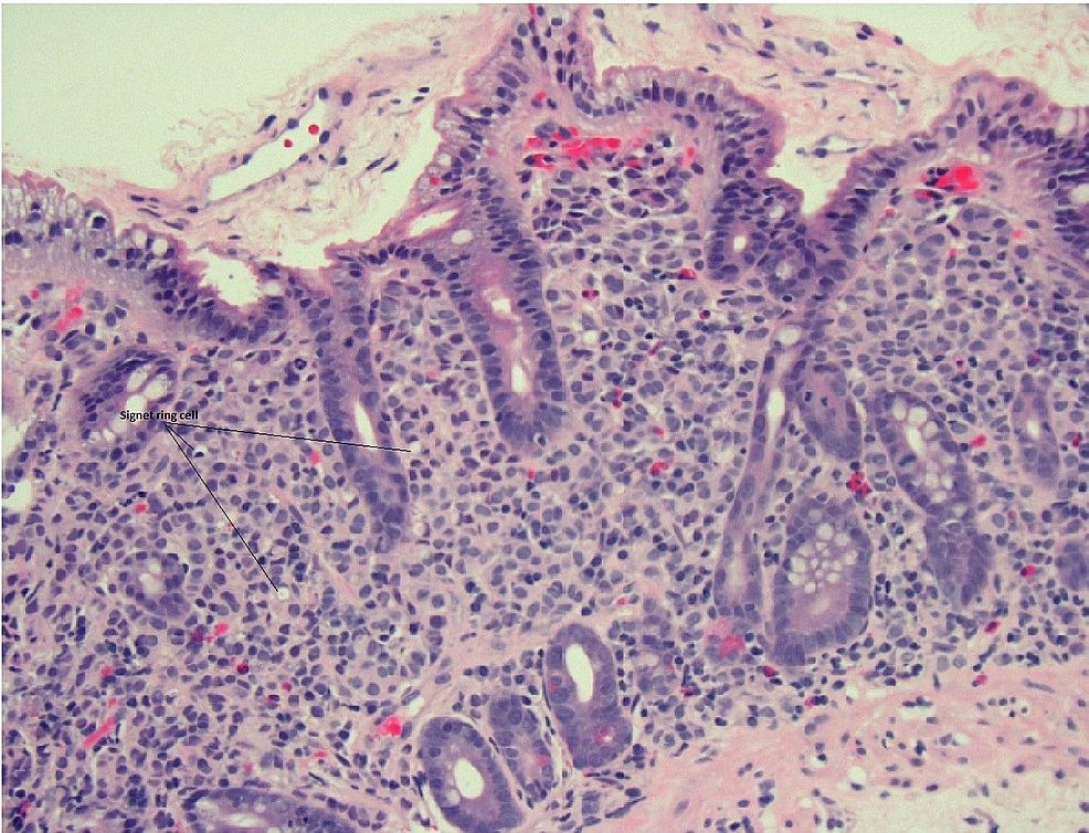 Duodenal-biopsy-revealing-signet-ring-carcinoma;-hematoxylin-and-eosin-20x