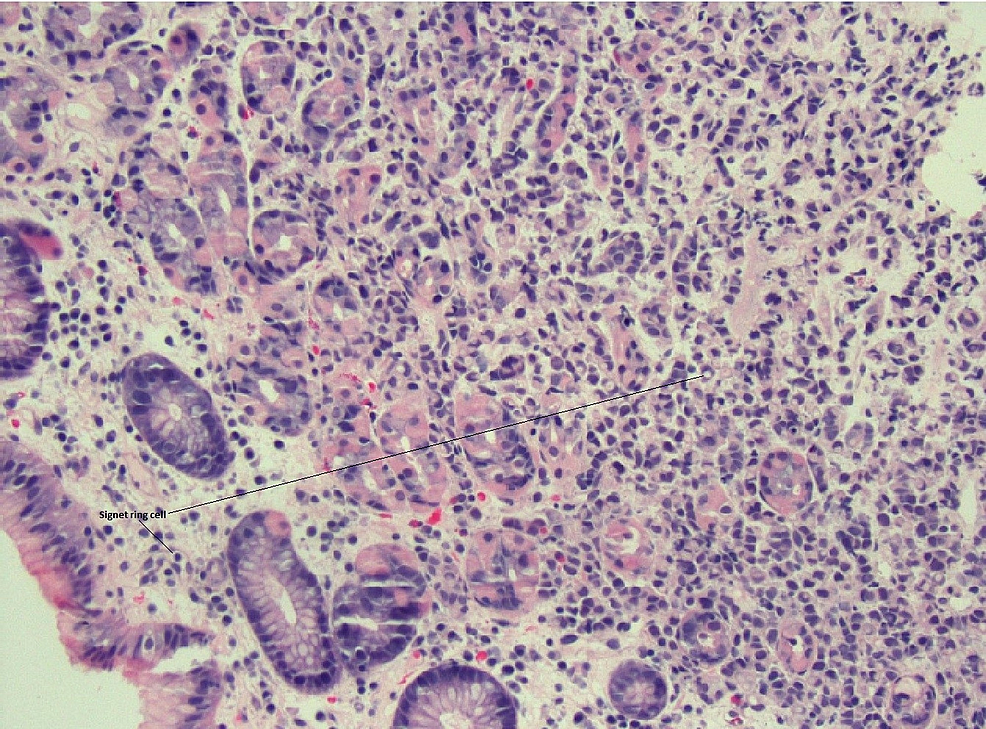 Gastric-biopsy-revealing-signet-ring-carcinoma;-hematoxylin-and-eosin-20x