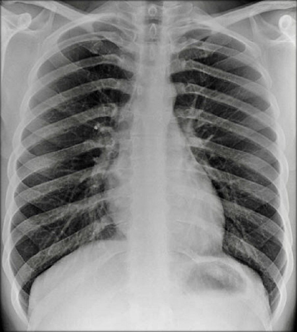 Chest-x-ray