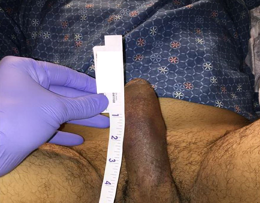 Erect-penis-after-direct-aspiration-and-an-intracavernous-phenylephrine-injection.