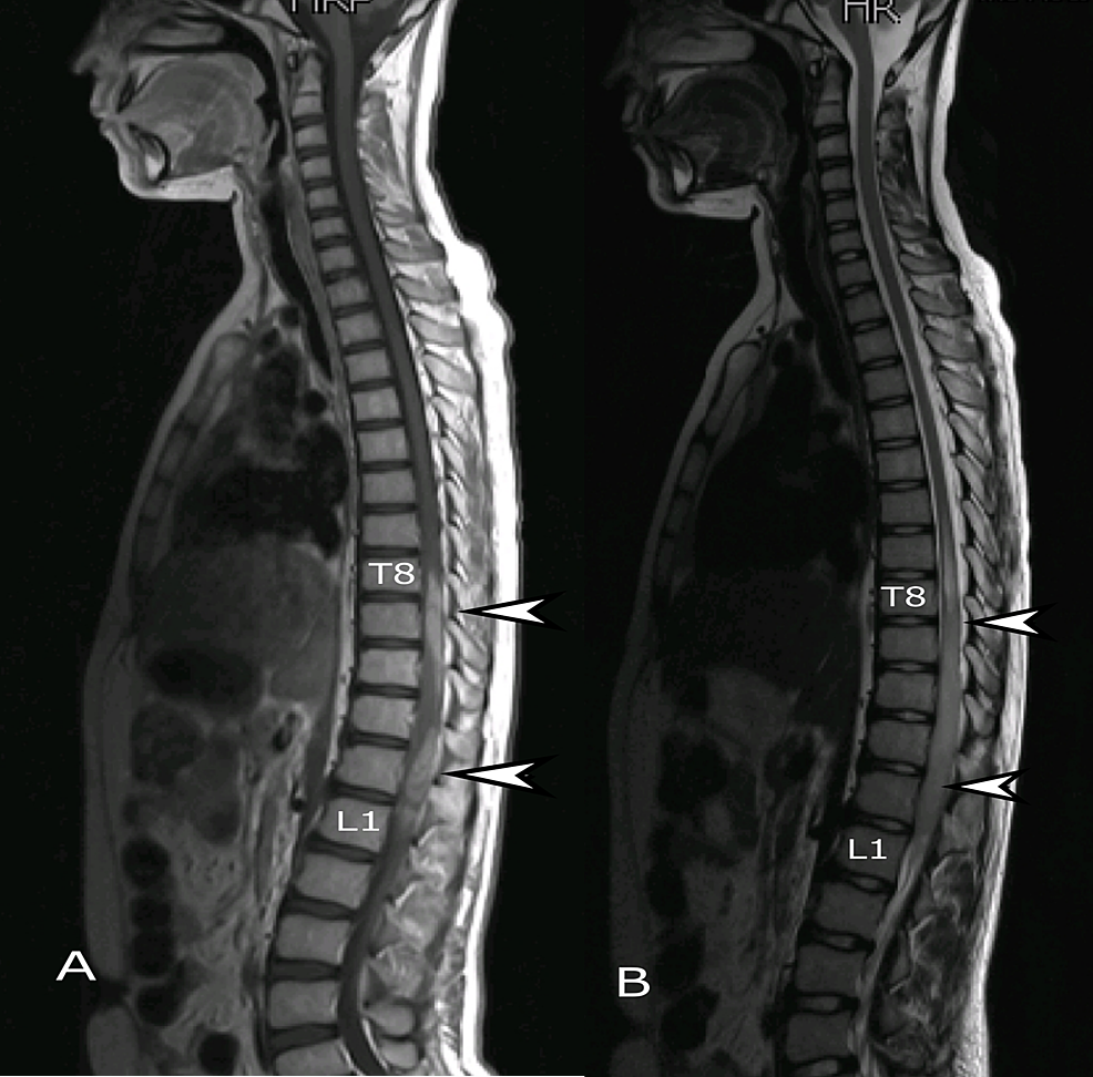 MRI-whole-spine,-sagittal-view.-(A)-T2-weighted-and-(B)-T1-weighted-post-contrast-images-showing-intramedullary-lesion-(arrows)-extending-from-T8-to-L1.