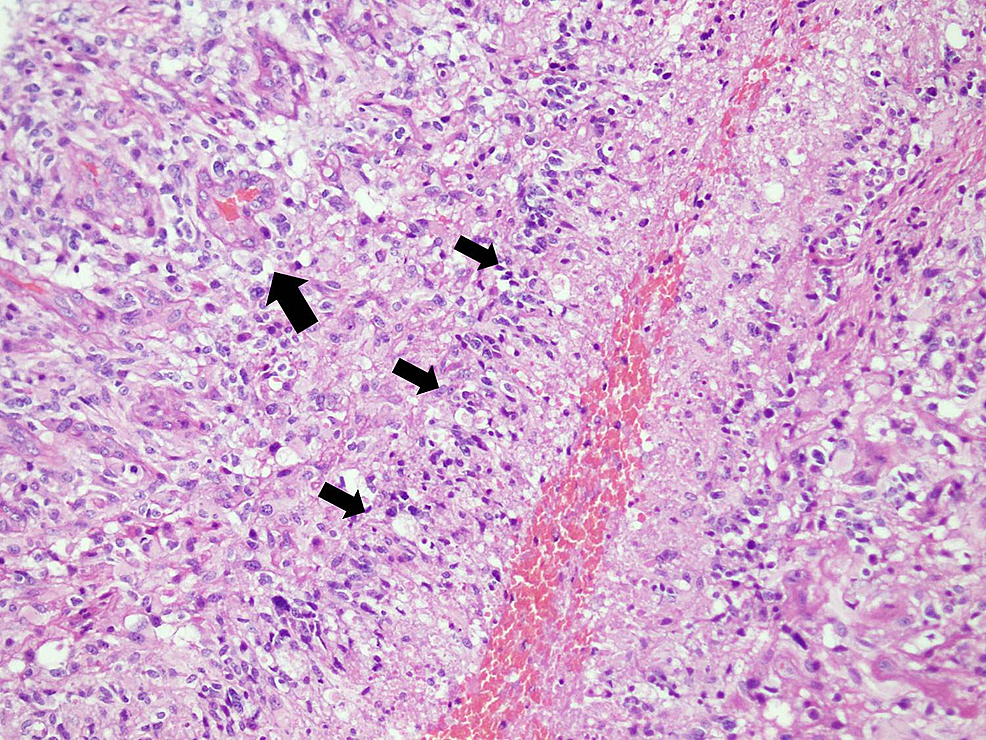 Low-power-view-of-cellular-glial-neoplasm-arranged-in-sheets-of-pleomorphic-neoplastic-cells.-Glomeruloid-vascular-proliferation-(long-arrow-head)-and-palisading-necrosis-is-also-seen-(short-arrow-heads).-(H&E-stain;-100x-magnification)