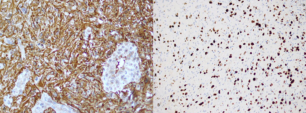(A)-Tumor-cells-show-diffuse-positive-expression-for-GFAP-immunohistochemical-stain-and-(B)-High-Ki-67-(Mib-1)-index.