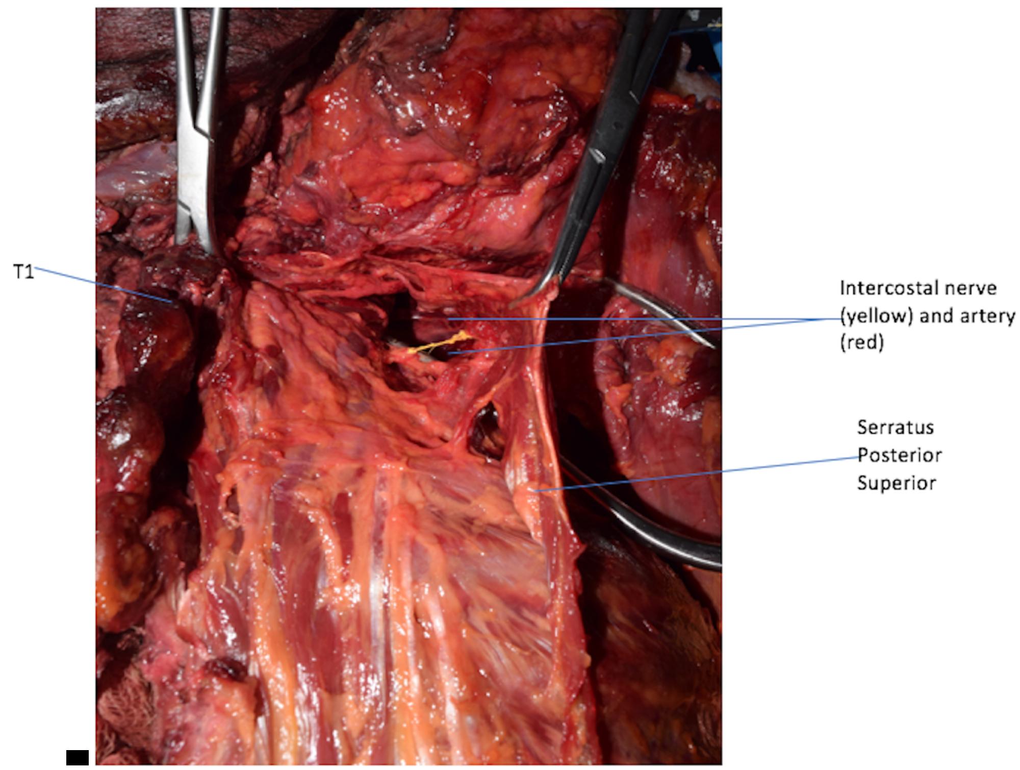 Cureus | An Unusual Back Muscle Identified Bilaterally: Case Report
