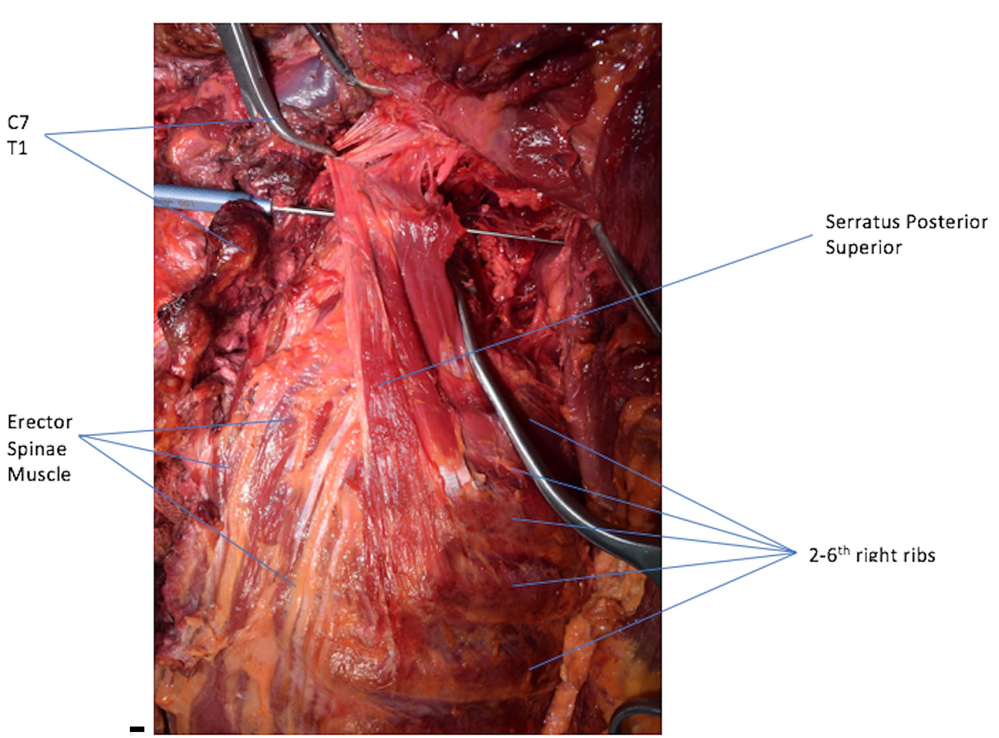 Cureus An Unusual Back Muscle Identified Bilaterally Case Report