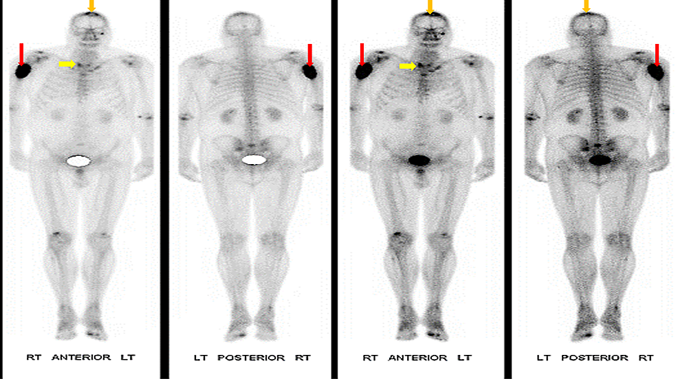 Bone-scintigraphy-of-the-patient,-showing-an-increased-uptake-in-the-right-proximal-humerus-(red-arrows)-as-well-as-the-apex-of-the-skull-(orange-arrows).-There-is-also-an-increased-uptake-in-thyroid-gland-(Yellow-arrows).