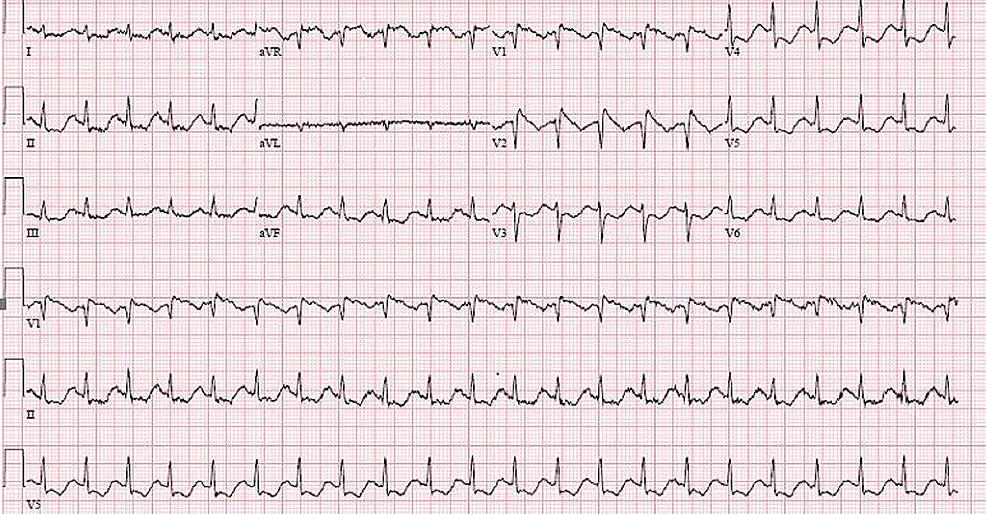 ECG-on-arrival:-normal-sinus-rhythm-at-a-heart-rate-of-125-bpm,-coving-pattern-in-V1-and-V2-suggestive-of-Brugada-type-1-pattern,-subtle-ST-depressions-in-antero-lateral-leads