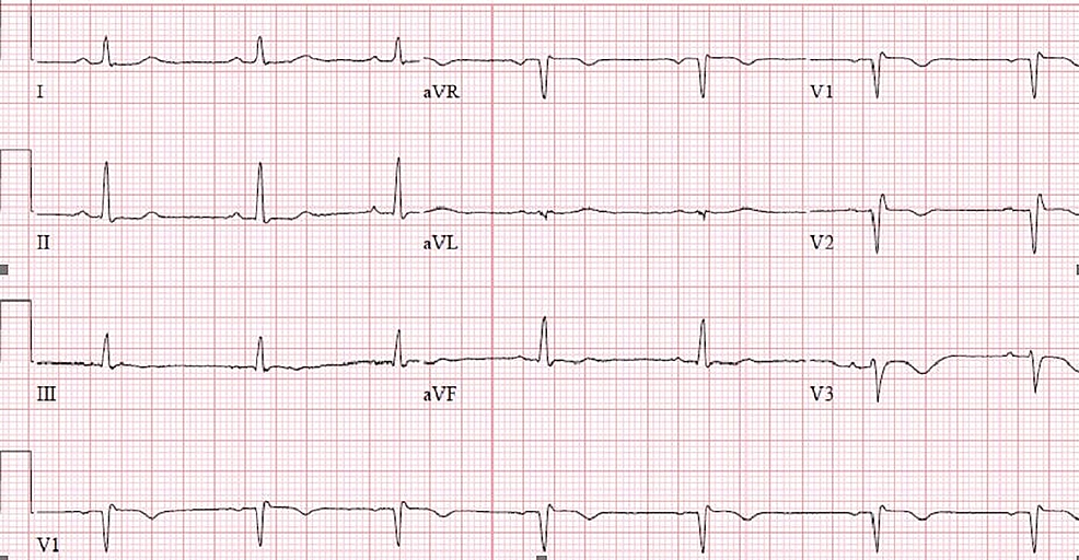 Repeat-ECG:-normal-sinus-rhythm-at-a-rate-of-62-bpm-with-incomplete-RBBB-and-mild-coving-consistent-with-a-type-2-pattern