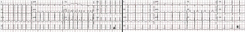 Electrocardiogram.