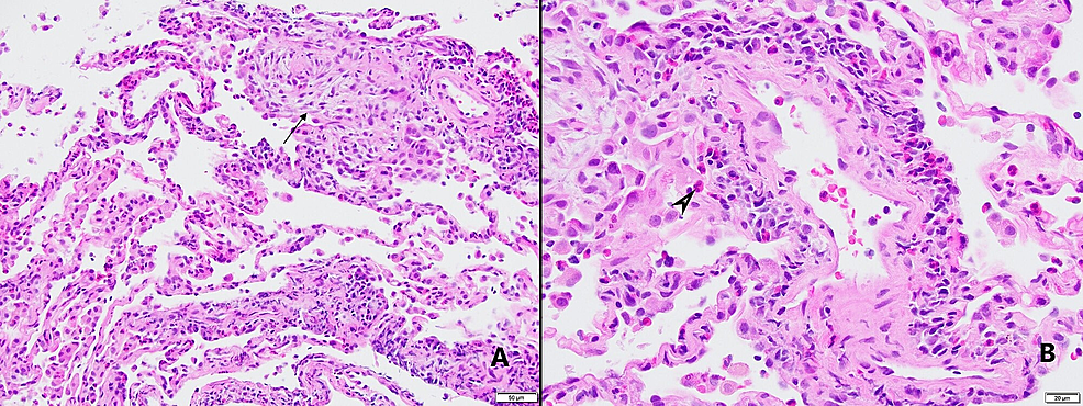 Pathology-images-of-cryobiopsies.