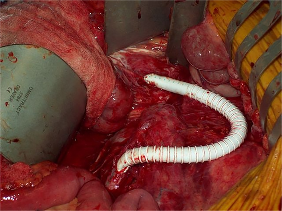 Intra-operative-picture-showing-right-iliac-to-SMA-retrograde-bypass-graft-placement.