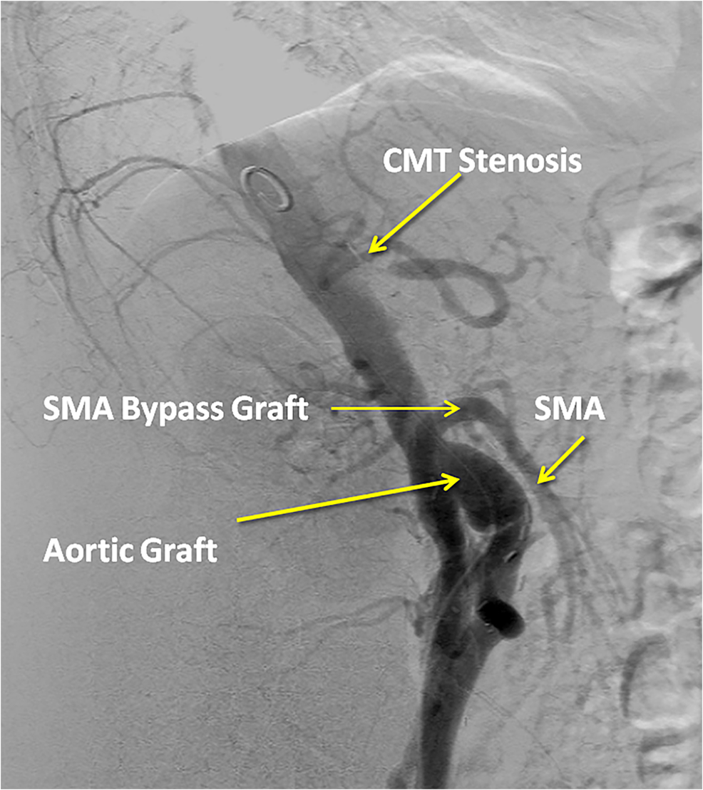 Aortogram-showing-proximal-CMT-stenosis-but-patent-right-iliac-to-SMA-bypass-graft.