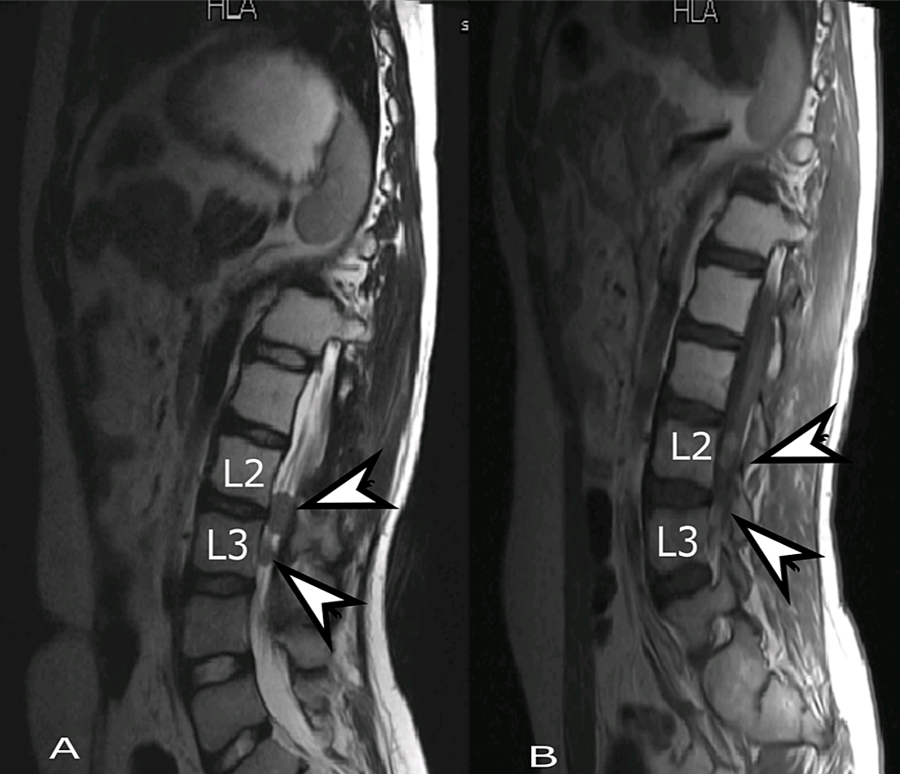 Follow-up-MRI-lumbar-spine,-sagittal-view.-(A)-T2-weighted-and-(B)-T1-weighted-post-contrast-images-showing-interval-development-of-two-new-rounded-lesions-(arrows).