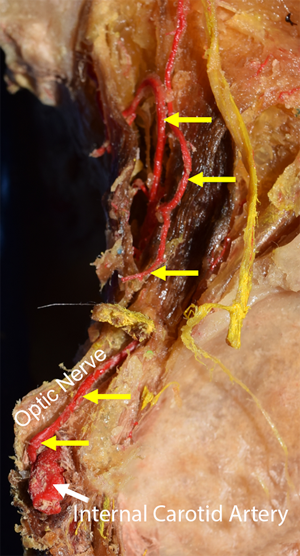 Course-of-the-right-optic-artery-arising-from-the-internal-carotid-artery-in-normal-anatomy-(yellow-arrows)