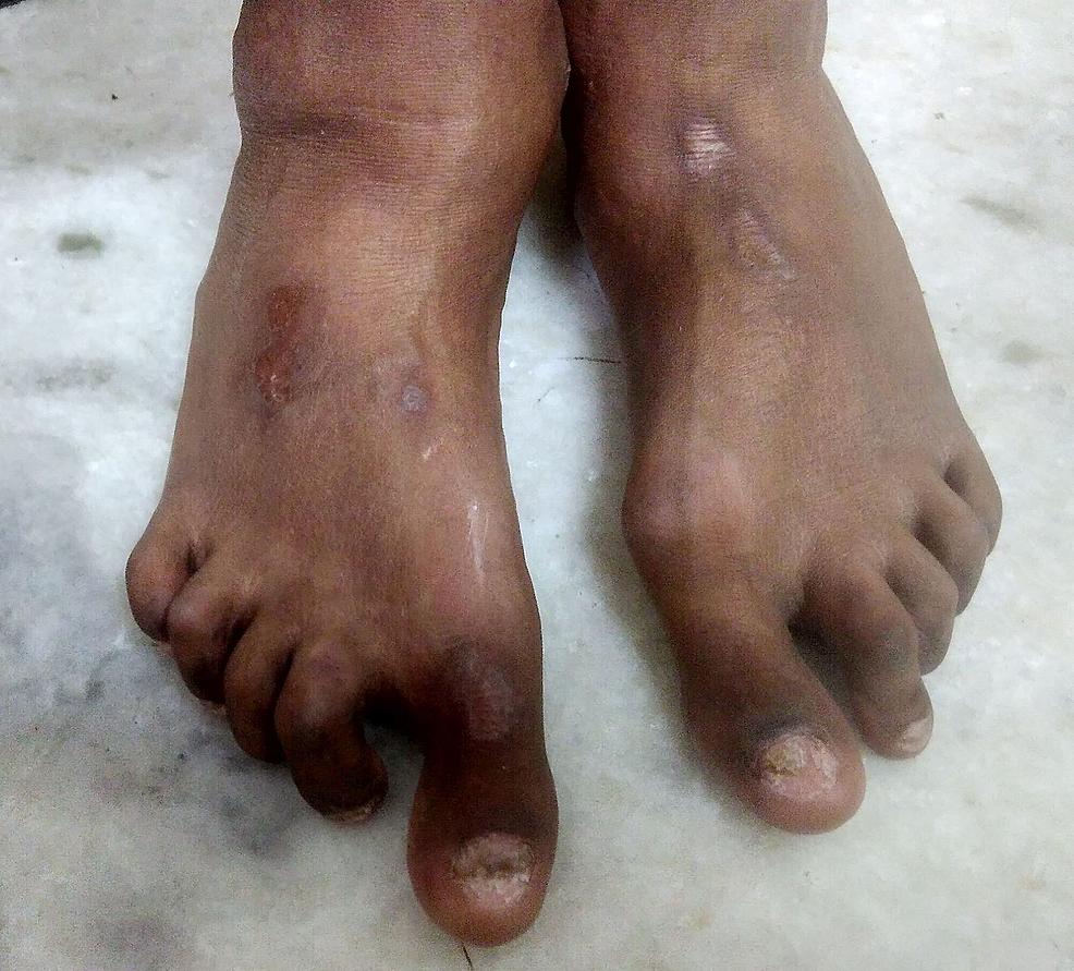 Foot-deformities.