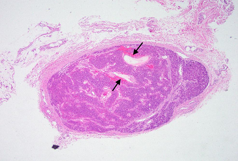 40x-magnification-of-histopathologic-sample